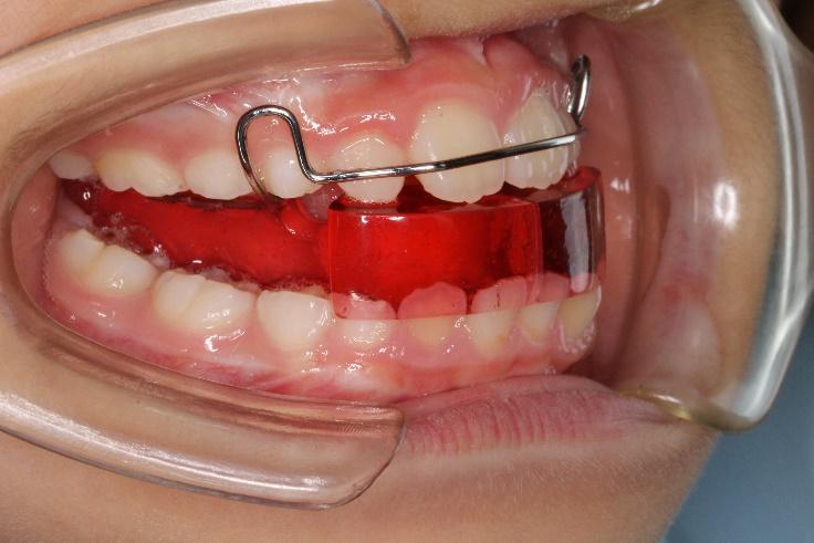 子供の出っ歯の治療について   世田谷区野沢の矯正歯科 しぶたに矯正 ...